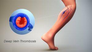 لخته شدن خون در پا یا بیماری dvt