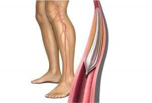 آنژیوپلاستی عروق پا
