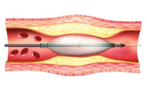 آنژیوپلاستی عروق پا چگونه انجام می شود