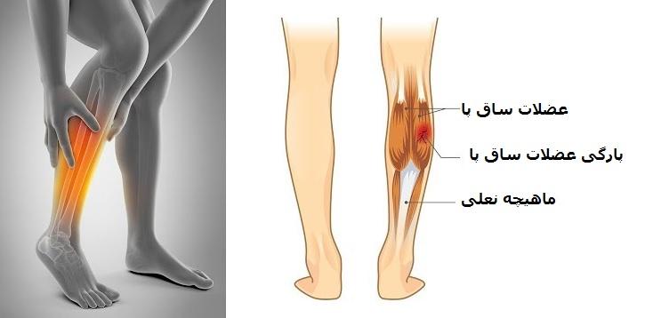 پارگی عضلات ساق پا