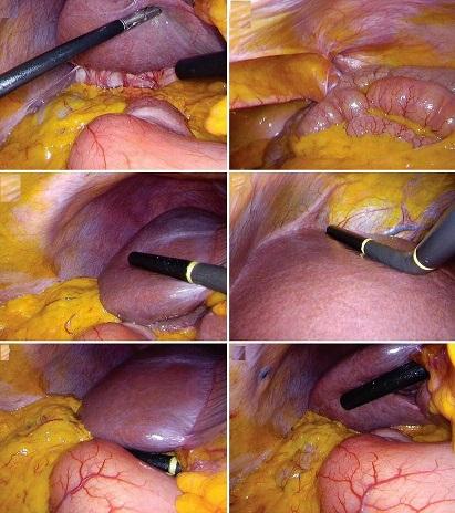 لاپاروسکوپی سرطان پانکراس