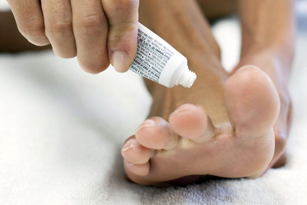درمان دارویی خارش پا