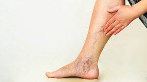 زخم های واریسی ساق پا
