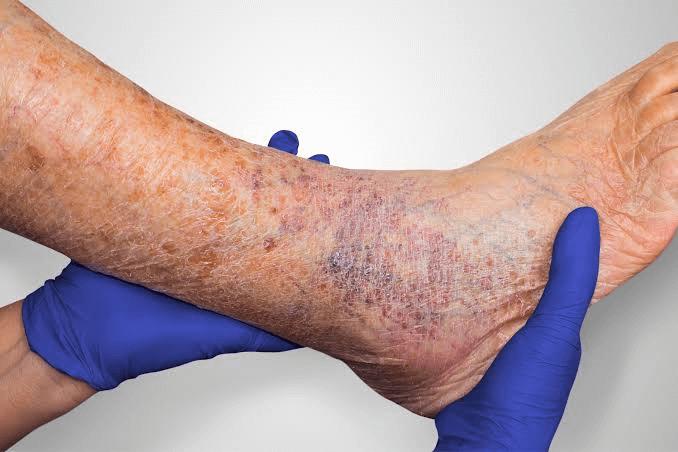 زخم وریدی ساق پا