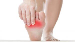 سندرم ارتیروملالژیا یا داغی کف پا