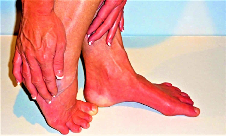 درمان سوزش دست و پا