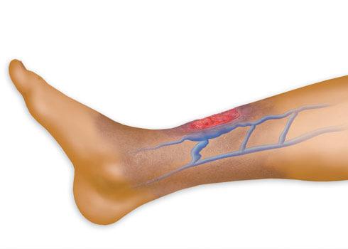 زخم ساق پای دیابتی