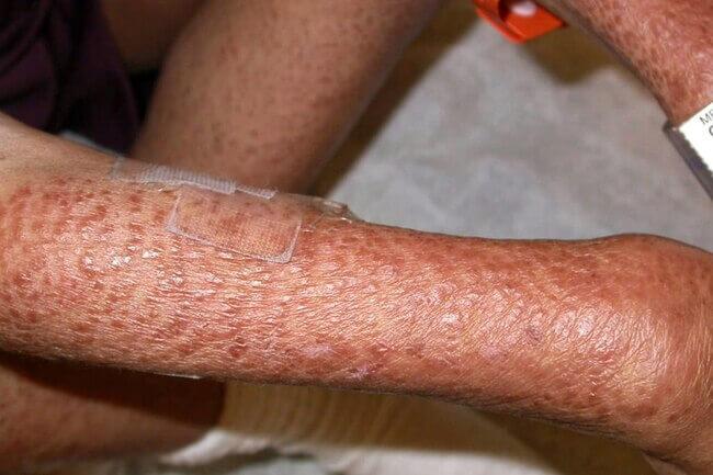براق شدن پوست پا