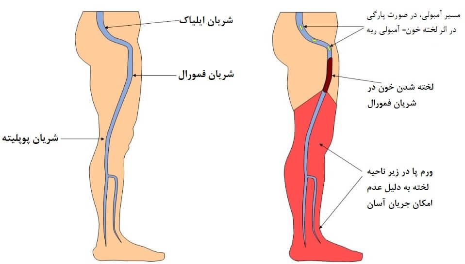 علائم لخته شدن خون در پا