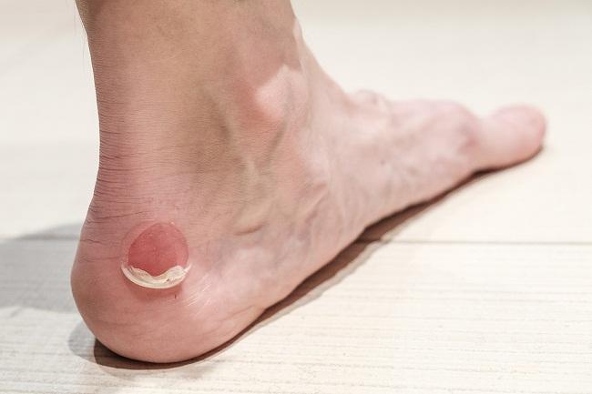 درمان قطعی تاول پای دیابتی