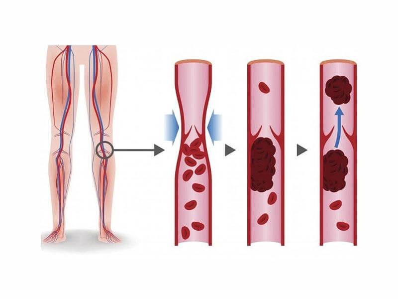 لخته خون پشت زانو چگونه تشکیل می شود
