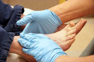آنژیوگرافی پای دیابتی