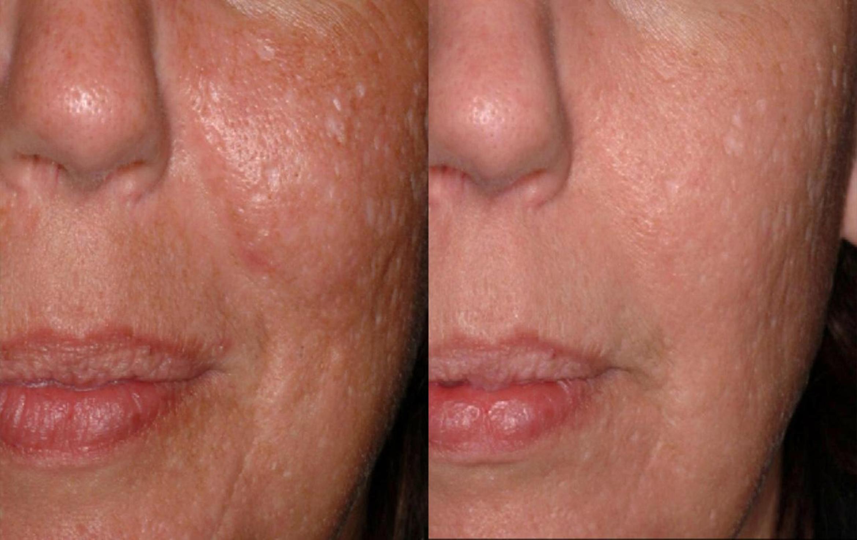 درمان ورید صورت با لیزر