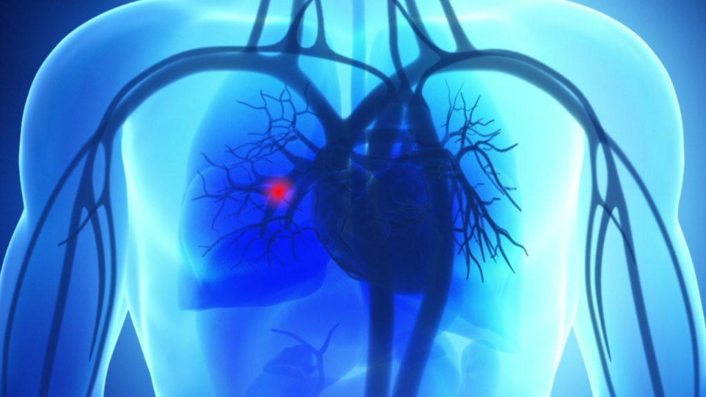 روش های درمان آمبولی ریه