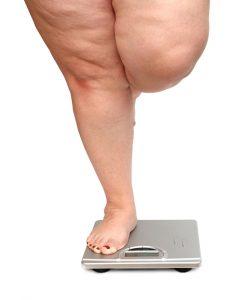 تاثیر افزایش وزن در ایجاد وریدهای واریسی