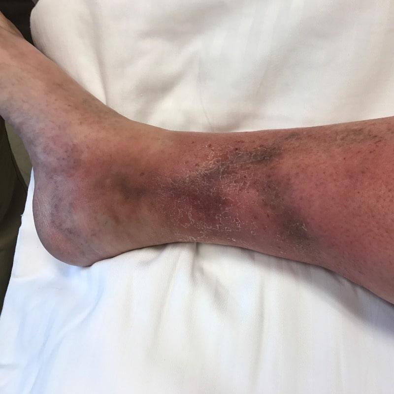 عوامل بروز زخم های وریدی