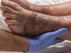 علت سیاه شدن مچ پا در مردان
