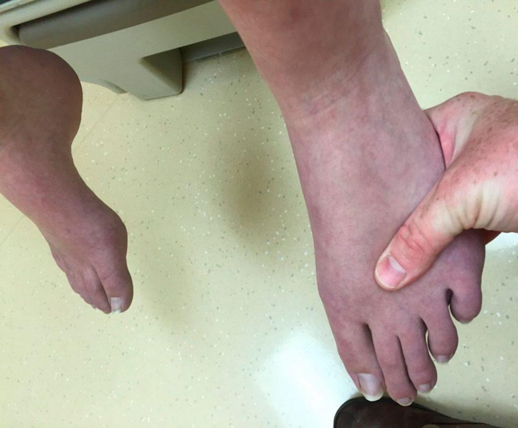 تغییر رنگ مچ پا
