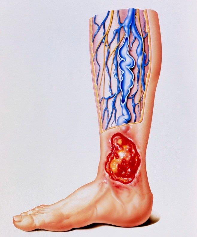 علت بروز زخم های وریدی