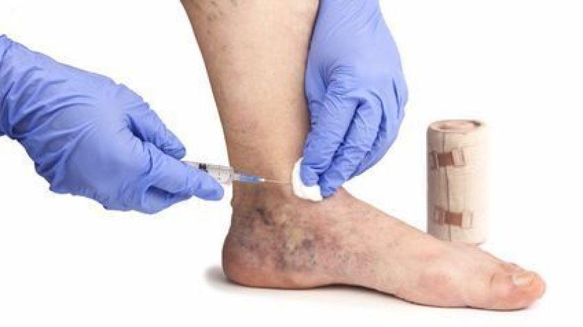 درمان وریدهای واریسی با اسکلروتراپی