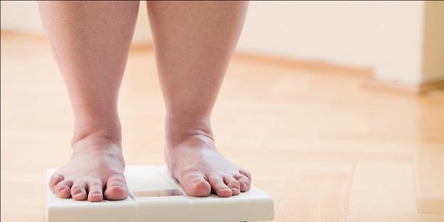 احتمال واریس در افراد مبتلا به اضافه وزن یا چاقی