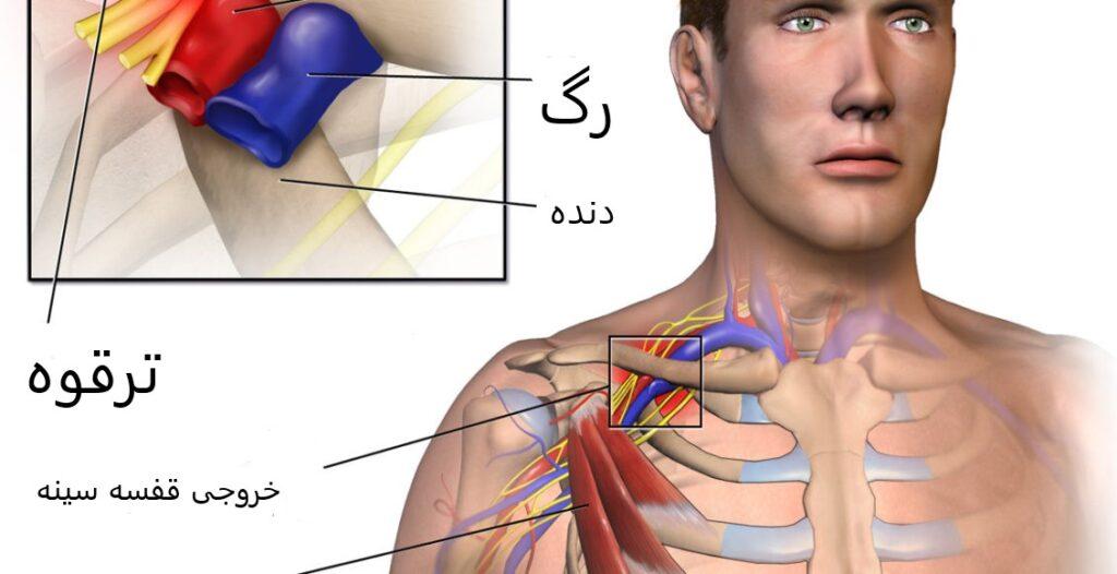 علت سندرم خروجی قفسه سینه