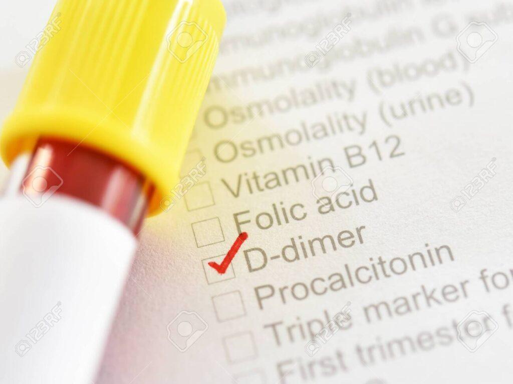 آزمایش دی دایمر چگونه آزمایشی است؟