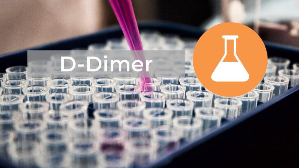 آزمایش دی دایمر چیست