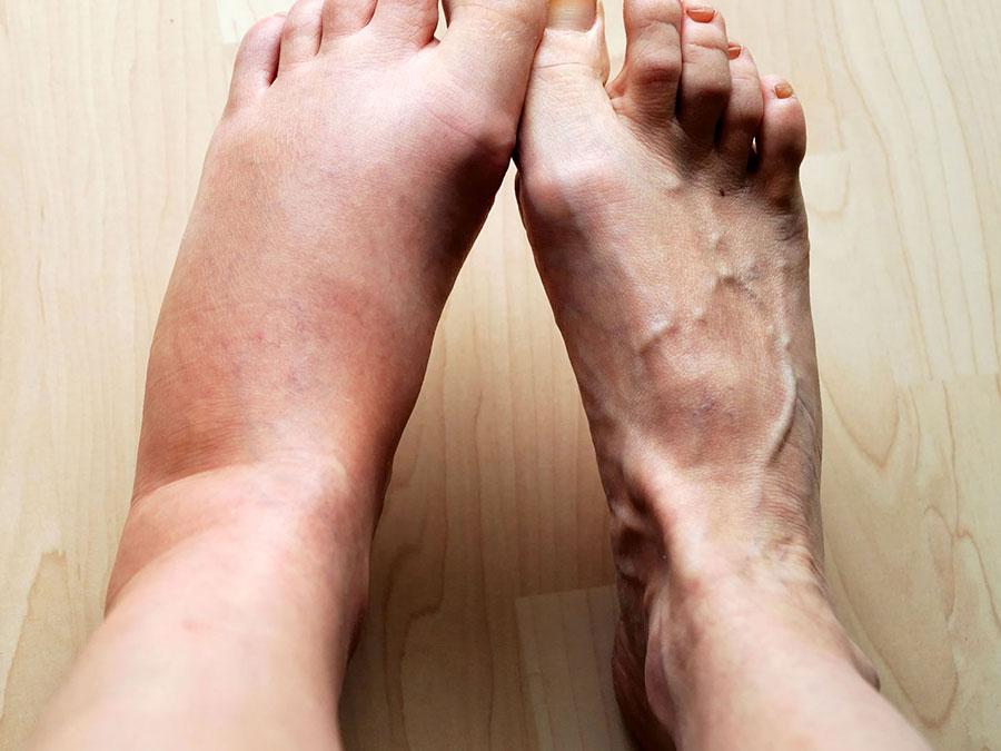درمان گرفتگی عروق پا
