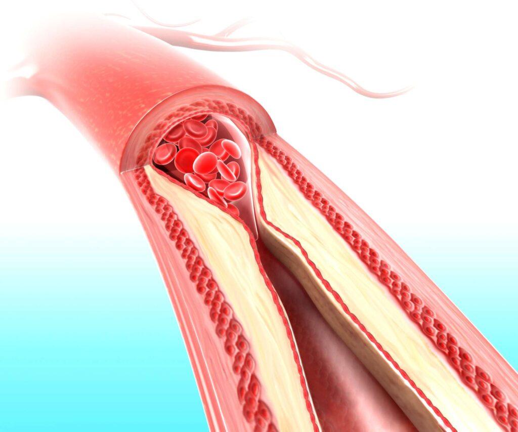 نشانه های احتمالی برای از کار افتادگی فیستول دیالیز