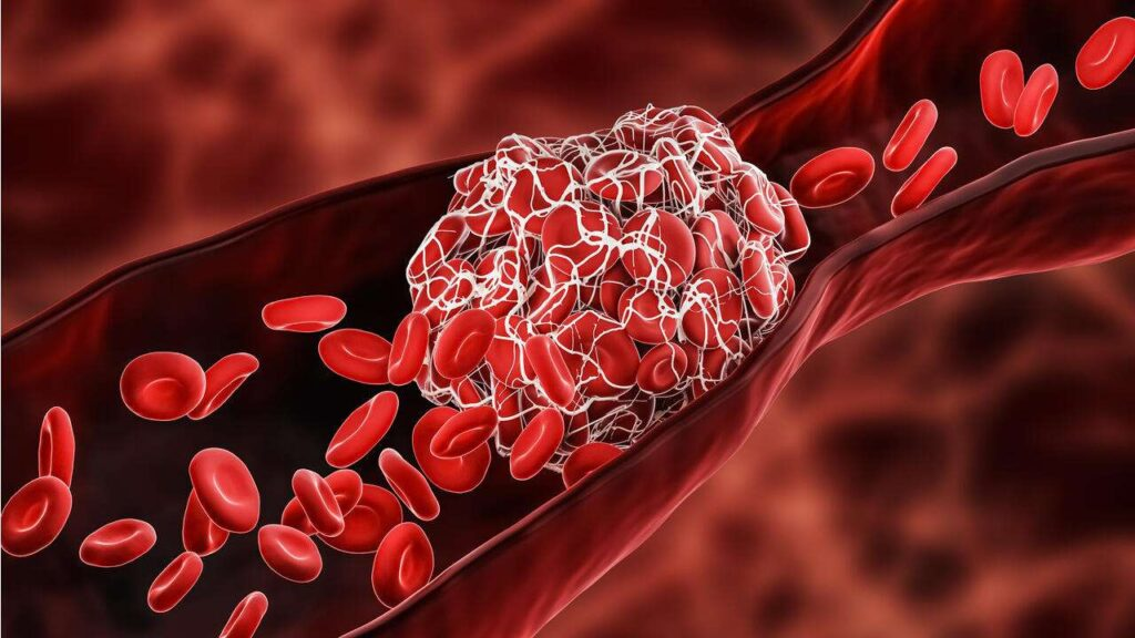 انواع لخته خون