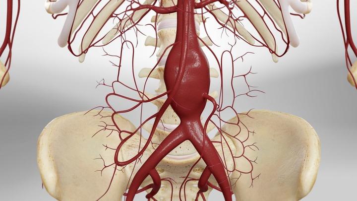 جراحی باز انوریسم ائورت شکمی