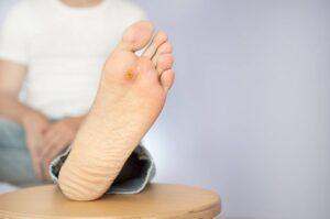 مراحل اولیه زخم پای دیابتی
