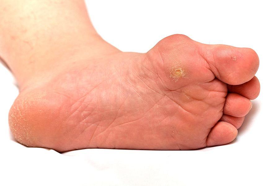 عکس زخم پای دیابتی