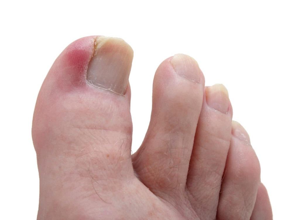 جلوگیری از زخم پای دیابتی
