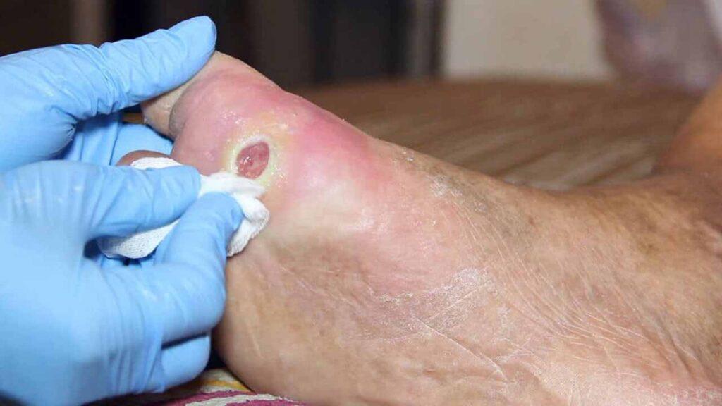 عوارض زخم پای دیابتی