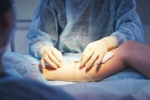جراحی بای پس اندام تحتانی