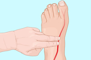 امبولی پا