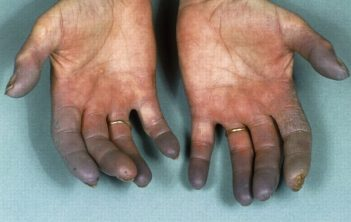 بیماری برگر