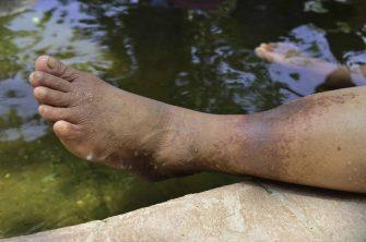 علت براق بودن پوست پا