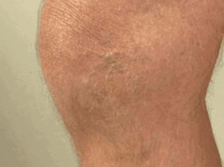 درمان رگ واریسی