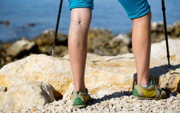 نارسایی مزمن وریدی در پا