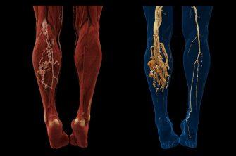 بیماری AVM در پا