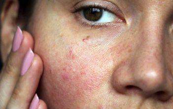 درمان مویرگ های کنار بینی