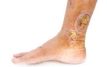 درمان زخم های وریدی